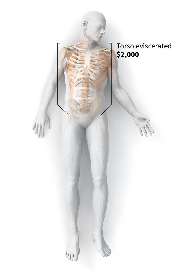 How one company made a fortune selling bodies donated to science